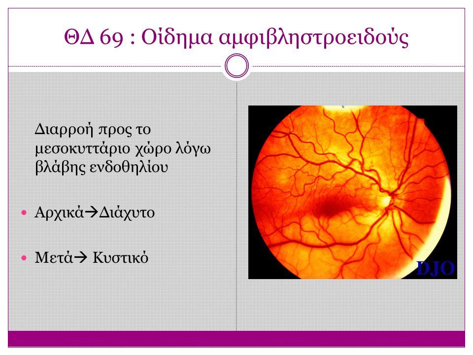 ΘΔ 69 : Οίδημα αμφιβληστροειδούς Διαρροή προς το μεσοκυττάριο χώρο λόγω βλάβης ενδοθηλίου Αρχικά  Διάχυτο Μετά  Κυστικό