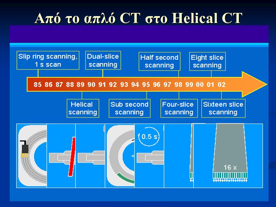 Από το απλό CT στο Helical CT