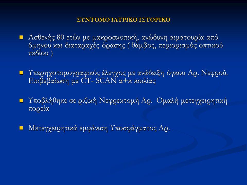 Στην βιβλιογραφία αναφέρονται παγκοσμίως 68 περιπτώσεις μεταστατικού νεφροκυτταρικού καρκίνου στον οφθαλμό και τoν οφθαλμικό κόγχο Στην βιβλιογραφία αναφέρονται παγκοσμίως 68 περιπτώσεις μεταστατικού νεφροκυτταρικού καρκίνου στον οφθαλμό και τoν οφθαλμικό κόγχο 1 1.