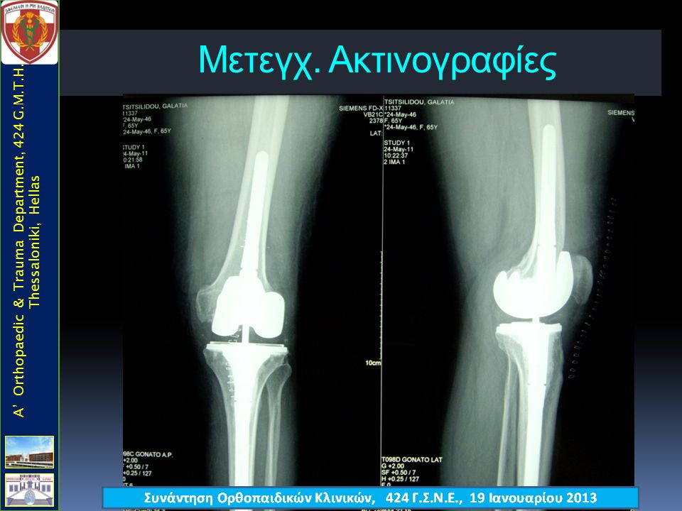 Mετεγχ. Ακτινογραφίες A' Orthopaedic & Trauma Department, 424 G.M.T.H., Thessaloniki, Hellas