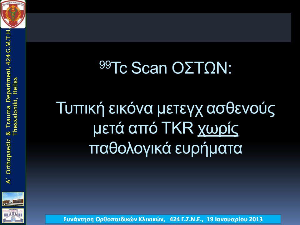 99 Tc Scan ΟΣΤΩΝ: Τυπική εικόνα μετεγχ ασθενούς μετά από TKR χωρίς παθολογικά ευρήματα A' Orthopaedic & Trauma Department, 424 G.M.T.H., Thessaloniki, Hellas