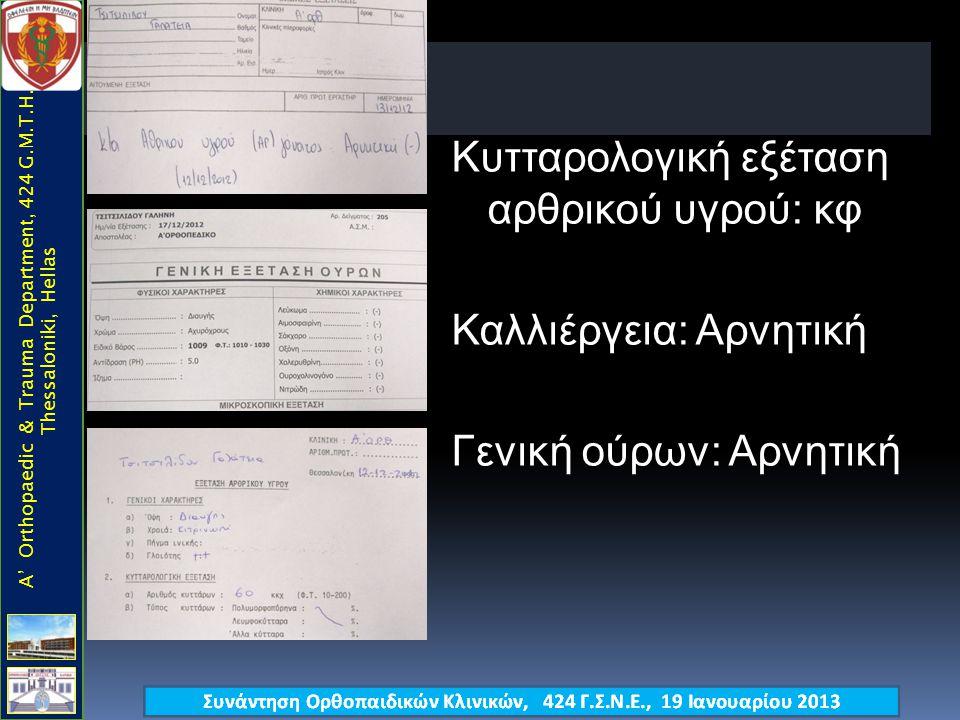 ? A' Orthopaedic & Trauma Department, 424 G.M.T.H., Thessaloniki, Hellas