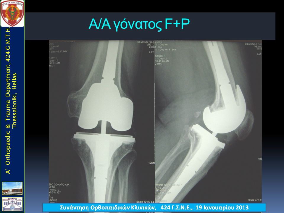 Α/Α γόνατος F+P A' Orthopaedic & Trauma Department, 424 G.M.T.H., Thessaloniki, Hellas