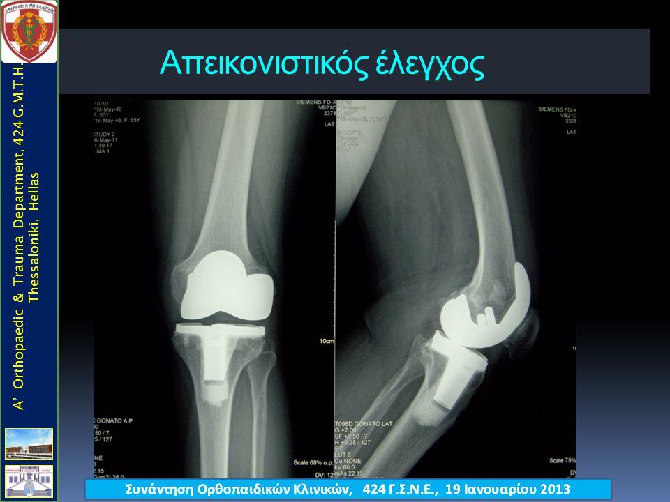 Απεικονιστικός έλεγχος  Α/Α γόνατος [F+P] A' Orthopaedic & Trauma Department, 424 G.M.T.H., Thessaloniki, Hellas