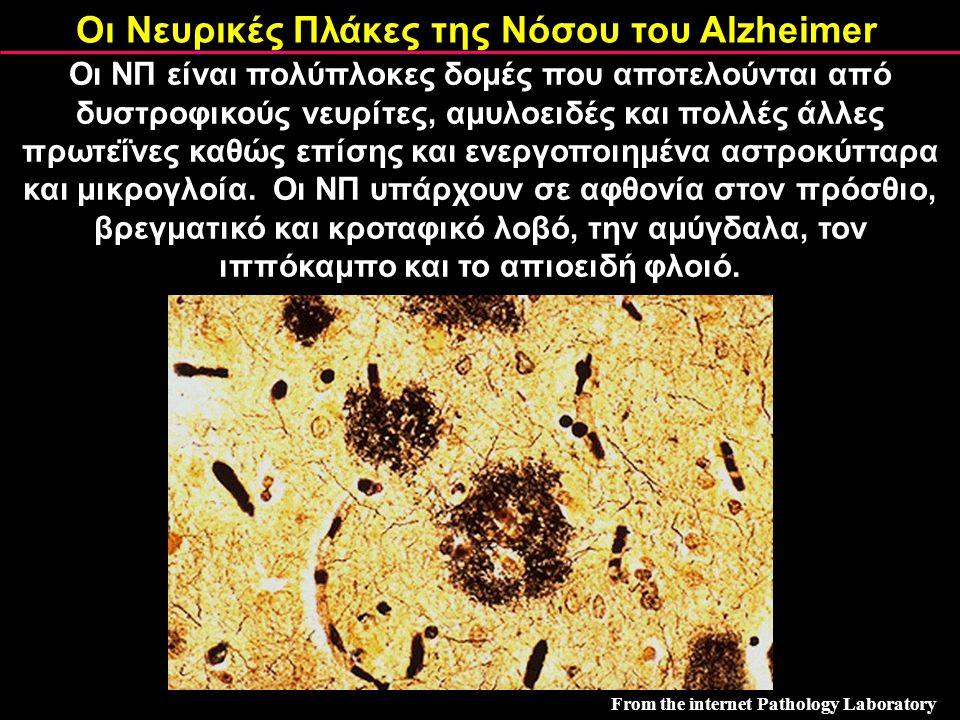 Οι Νευρικές Πλάκες της Νόσου του Alzheimer From the internet Pathology Laboratory Οι ΝΠ είναι πολύπλοκες δομές που αποτελούνται από δυστροφικούς νευρί