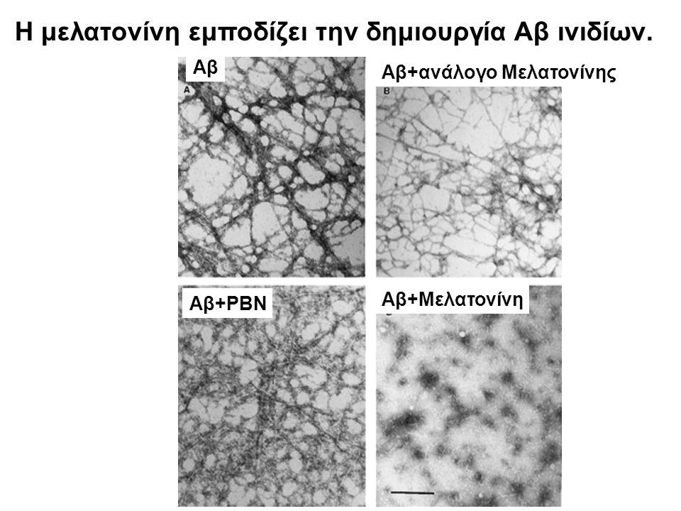 Η μελατονίνη εμποδίζει την δημιουργία Αβ ινιδίων. Αβ Αβ+ανάλογο Μελατονίνης Αβ+PBN Αβ+Μελατονίνη