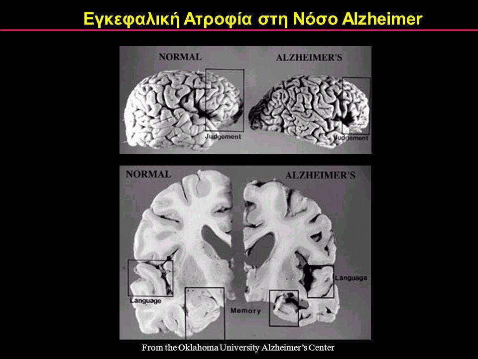 From the Oklahoma University Alzheimer's Center Εγκεφαλική Ατροφία στη Νόσο Alzheimer