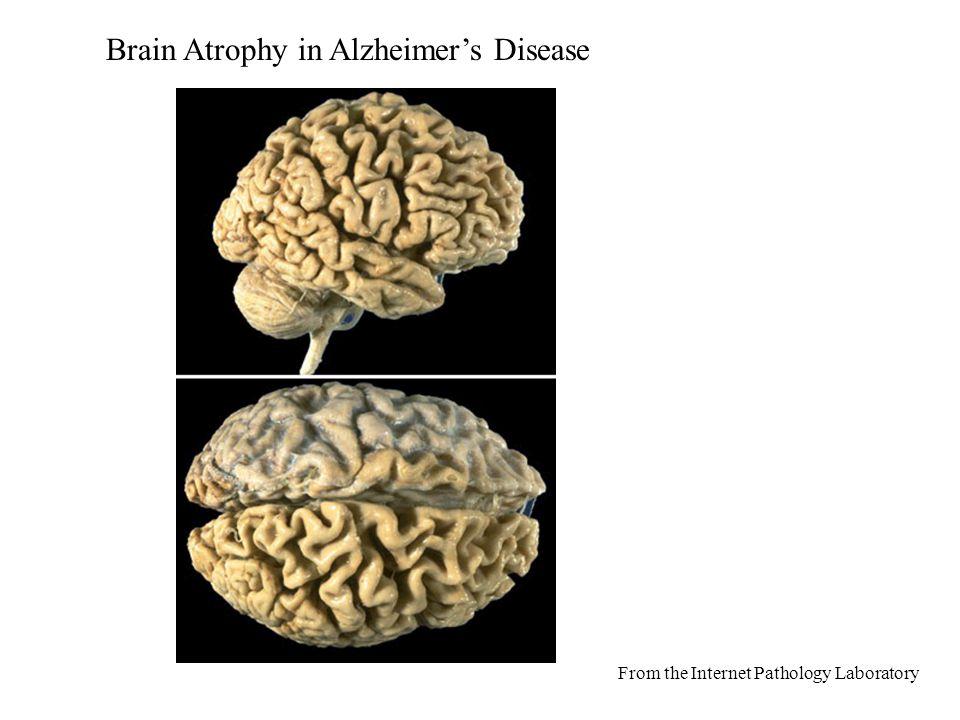 Στα 1910, Oscar Fisher Θεώρησε ότι οι αλλαγές που παρατηρούνται γύρω από τις εξωκυτταρικές εναποθέσεις ινιδίων στον εγκέφαλο των ασθενών με alzheimer είναι αποτέλεσμα της αντίδρασης του Ιστού σε μια ξένη ουσία.
