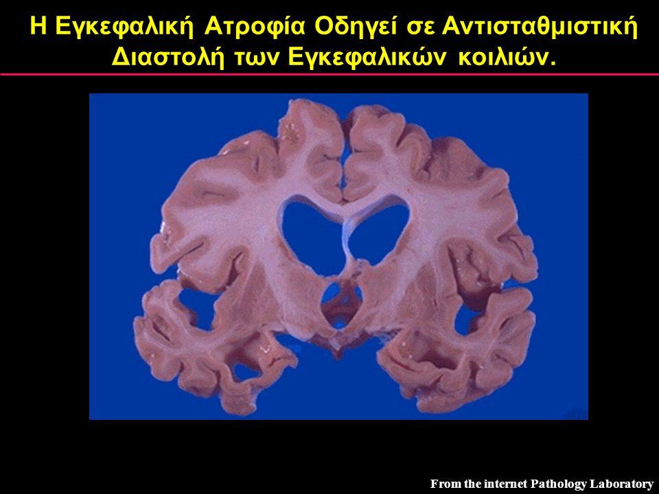 Η Εγκεφαλική Ατροφία Οδηγεί σε Αντισταθμιστική Διαστολή των Εγκεφαλικών κοιλιών. From the internet Pathology Laboratory