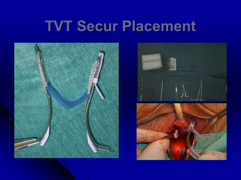 TVT Secur Placement