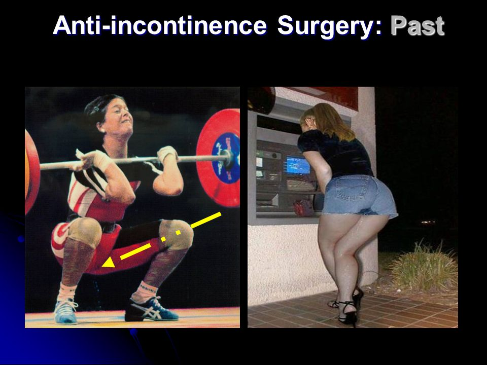Anti-incontinence Surgery: Recent Past Acta Scand Obstet Gynecol 1990 The integral theory of female pelvic floor Petros, Ulmsten