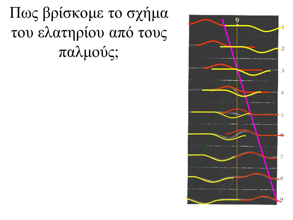 Πως βρίσκομε το σχήμα του ελατηρίου από τους παλμούς;