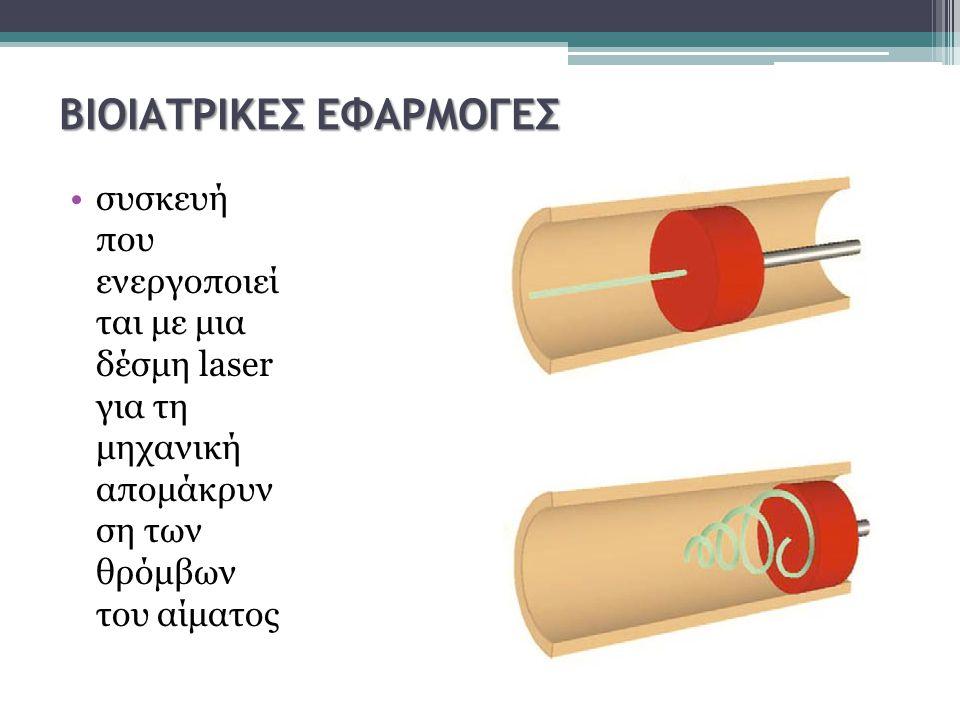 ΒΙΟΙΑΤΡΙΚΕΣ ΕΦΑΡΜΟΓΕΣ συσκευή που ενεργοποιεί ται με μια δέσμη laser για τη μηχανική απομάκρυν ση των θρόμβων του αίματος