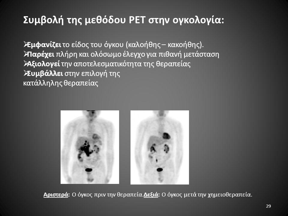 Συμβολή της μεθόδου PET στην ογκολογία:  Εμφανίζει το είδος του όγκου (καλοήθης – κακοήθης).  Παρέχει πλήρη και ολόσωμο έλεγχο για πιθανή μετάσταση