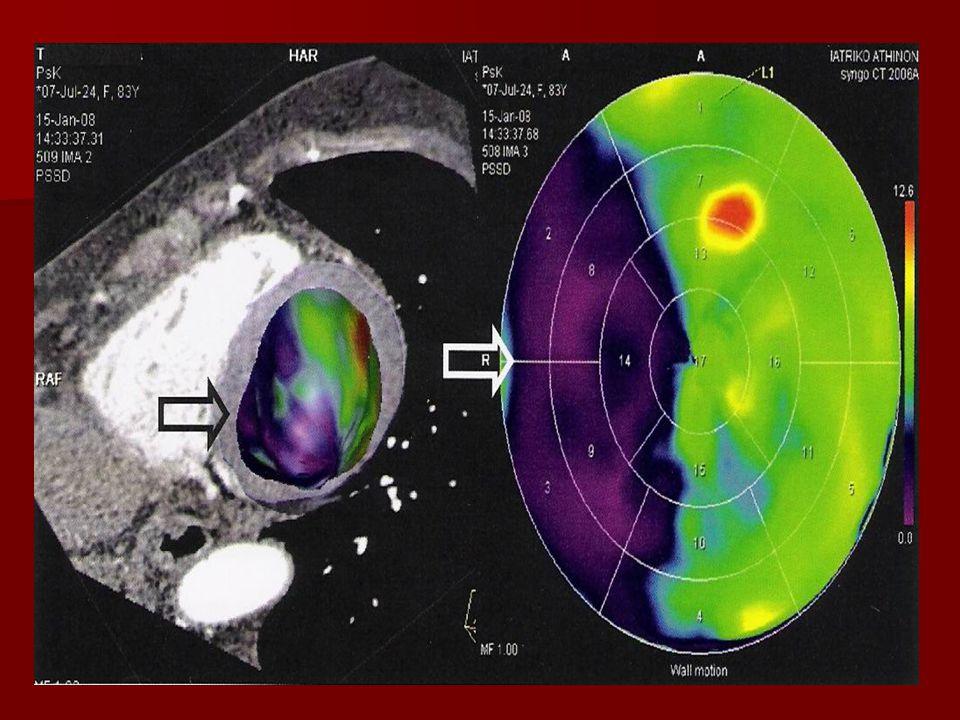 Οι ασθενείς με στεφανιαία νόσο εμφανίζουν μια σειρά σοβαρών προβλημάτων: Στηθάγχη (angina pectoris) Στηθάγχη (angina pectoris) Οξύ έμφραγμα του μυοκαρδίου (καρδιακή προσβολή) Οξύ έμφραγμα του μυοκαρδίου (καρδιακή προσβολή) Κολπικές ή κοιλιακές αρρυθμίες (κοιλιακή μαρμαρυγή) Κολπικές ή κοιλιακές αρρυθμίες (κοιλιακή μαρμαρυγή) Η αντιμετώπιση των καρδιαγγειακών νόσων περιλαμβάνει: φαρμακευτική αγωγή φαρμακευτική αγωγή συστάσεις για αλλαγές στον τρόπο ζωής και τις συμπεριφορές που σχετίζονται με την υγεία συστάσεις για αλλαγές στον τρόπο ζωής και τις συμπεριφορές που σχετίζονται με την υγεία επέμβαση ή εγχείρηση: επέμβαση ή εγχείρηση: –αγγειοπλαστική ( 'μπαλονάκι') –επέμβαση αορτοστεφανιαίας παράκαμψης των στεφανιαίων αρτηριών ('bypass').