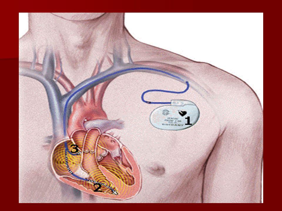 Συνέπειες: Οι ασθενείς βιώνουν μεγάλες ποσότητες άγχους που πολλά άτομα το διαχειρίζονται με χρήση στρατηγικών αποφυγής Οι ασθενείς βιώνουν μεγάλες ποσότητες άγχους που πολλά άτομα το διαχειρίζονται με χρήση στρατηγικών αποφυγής Συνήθως μετά την 3η ή 4η ημέρα το άγχος υποχωρεί.