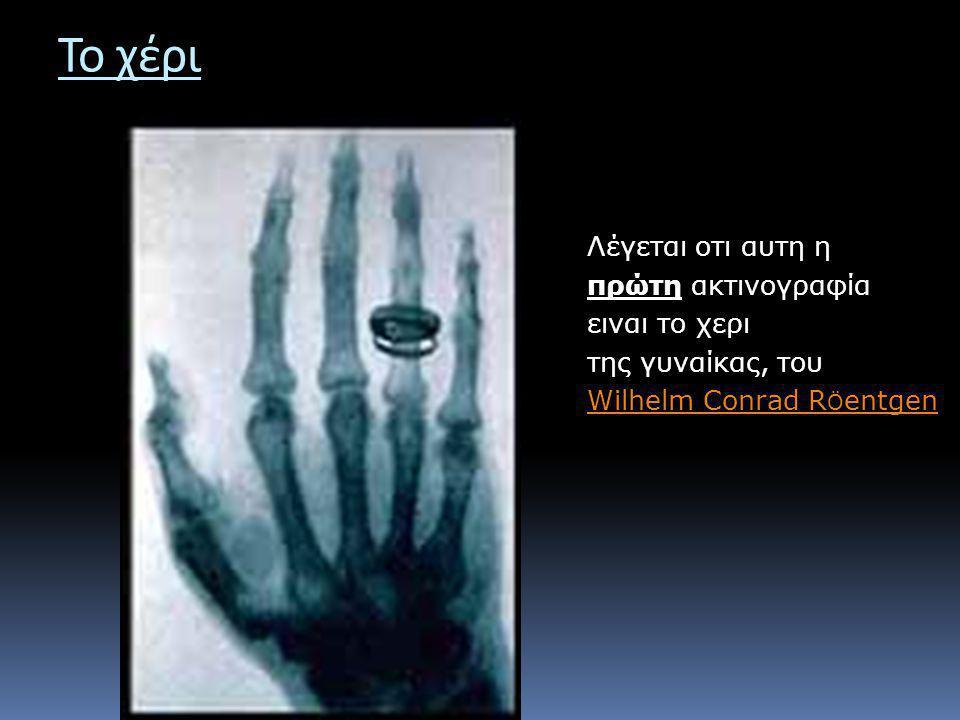 Το χέρι Λέγεται οτι αυτη η πρώτη ακτινογραφία ειναι το χερι της γυναίκας, του Wilhelm Conrad R Ö entgen Wilhelm Conrad R Ö entgen
