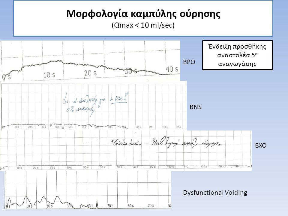 Μορφολογία καμπύλης ούρησης (Qmax < 10 ml/sec) BNS BXO BPO Ένδειξη προσθήκης αναστολέα 5 α αναγωγάσης Dysfunctional Voiding