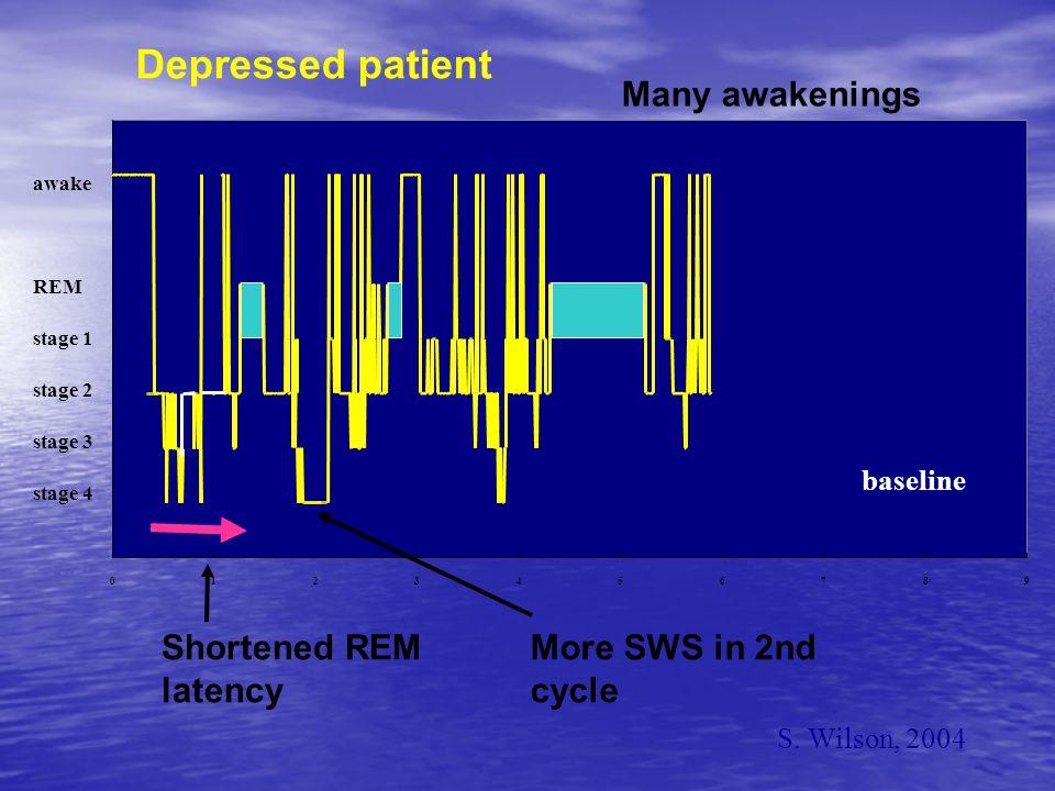 0 5 10 15 20 25 30 35 40 060120180240300360420480 minutes of sleep EEG delta power units 0 5 10 15 20 25 30 35 40 060120180240300360420480 minutes of sleep EEG delta power units A B normal depressed Delta sleep Wilson & Argyropoulos, 2004