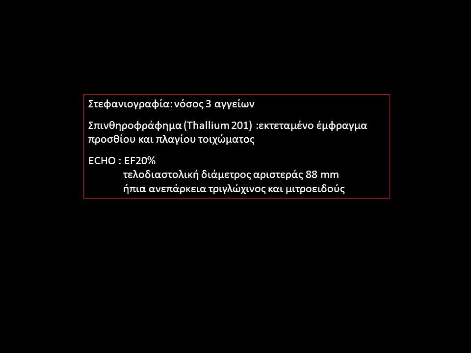 Στεφανιογραφία: νόσος 3 αγγείων Σπινθηροφράφημα (Thallium 201) :εκτεταμένο έμφραγμα προσθίου και πλαγίου τοιχώματος ECHO : EF20% τελοδιαστολική διάμετρος αριστεράς 88 mm ήπια ανεπάρκεια τριγλώχινος και μιτροειδούς