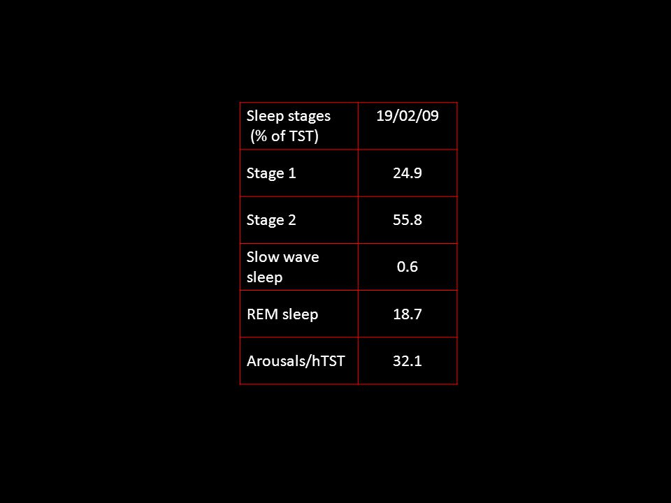Sleep stages (% of TST) 19/02/09 Stage 124.9 Stage 255.8 Slow wave sleep 0.6 REM sleep18.7 Arousals/hTST32.1