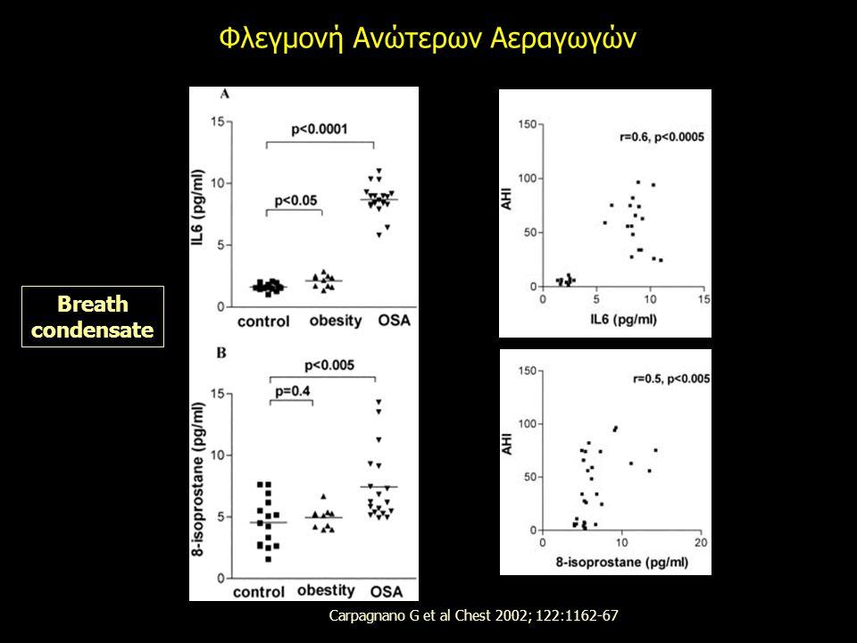 Φλεγμονή Ανώτερων Αεραγωγών Carpagnano G et al Chest 2002; 122:1162-67 Breath condensate