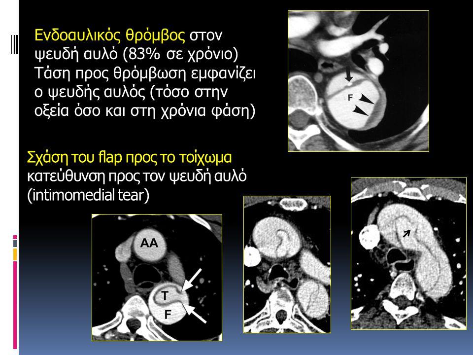 Σχάση του flap προς το τοίχωμα κατεύθυνση προς τον ψευδή αυλό (intimomedial tear) Ενδοαυλικός θρόμβος στον ψευδή αυλό (83% σε χρόνιο) Τάση προς θρόμβω