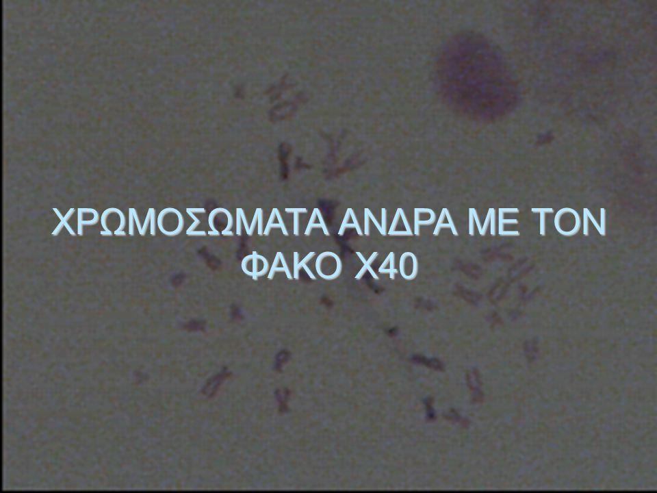 ΧΡΩΜΟΣΩΜΑΤΑ ΑΝΔΡΑ ΜΕ ΤΟΝ ΦΑΚΟ Χ40