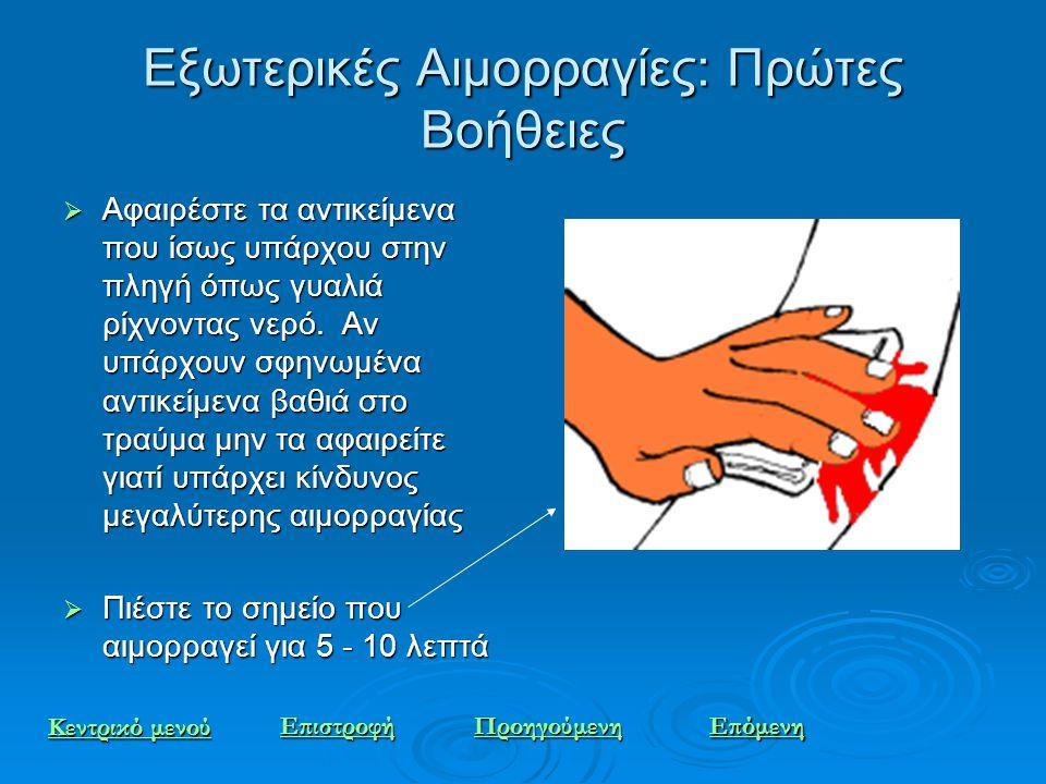 Εξωτερικές Αιμορραγίες: Πρώτες Βοήθειες  Αφαιρέστε τα αντικείμενα που ίσως υπάρχου στην πληγή όπως γυαλιά ρίχνοντας νερό. Αν υπάρχουν σφηνωμένα αντικ