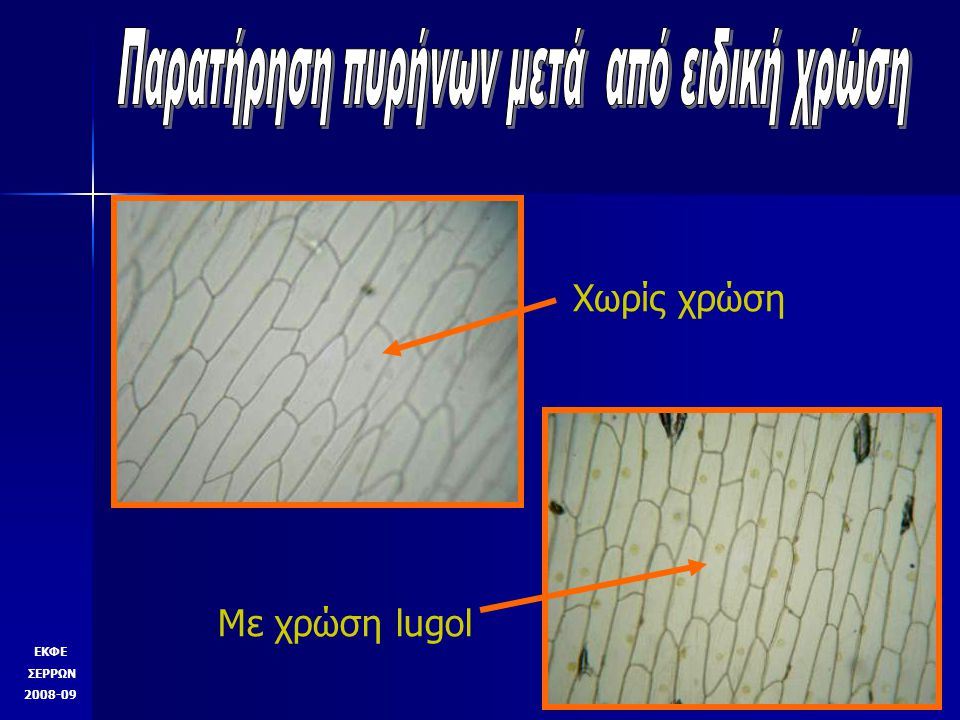ΕΚΦΕ ΣΕΡΡΩΝ 2008-09 Παρατήρηση πυρήνων μετά από ειδική χρώση Κλίμακα μικροσκοπίου συνεργασίας ΜεγέθυνσηΜεγάλη υποδιαίρεση Μικρή υποδιαίρεση Χ 400,11..mm ή 111μ22μ Χ 10044μ8,9μ Χ 40011μ2,2μ Χ 10004,4μ0,89μ Χ 400