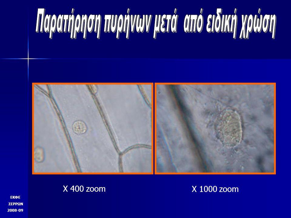 ΕΚΦΕ ΣΕΡΡΩΝ 2008-09 Φωτογραφία μετά από μετατροπή του εργαστηριακού μικροσκοπίου σε μικροσκόπιο σκοτεινού πεδίου Σαμαράς Π.