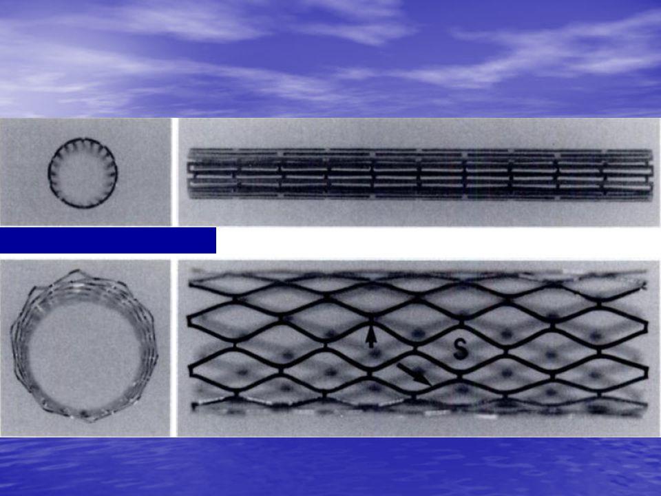 Hoop stress Η ικανότητα του stent να αντιστέκεται στην υπολειπόμενη κυκλοτερή ελαστικότητα της αρτηρίας Η τάση και η ελαστικότητα του αγγειακού τοιχώματος ποικίλλει the hoop stress (residual circumferential elasticity) που υπάρχει μετά από διαστολή με μπαλόνι είναι υπεύθυνη για το collapse σε ένα ασθενές αγγειακό τοίχωμα, μετά την τοποθέτηση του ενδονάρθηκα.