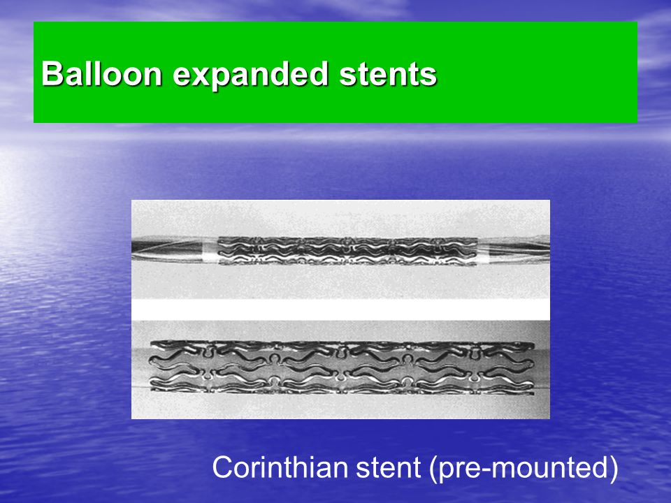 Balloon expanded stents Corinthian stent (pre-mounted)