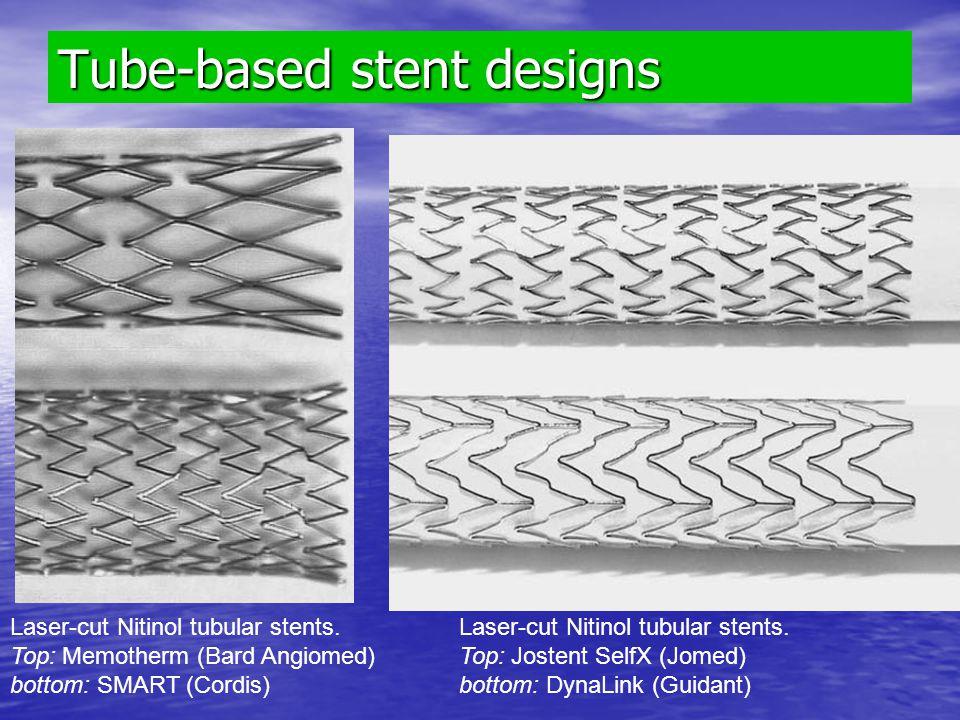 Tube-based stent designs Laser-cut Nitinol tubular stents. Top: Memotherm (Bard Angiomed) bottom: SMART (Cordis) Laser-cut Nitinol tubular stents. Top