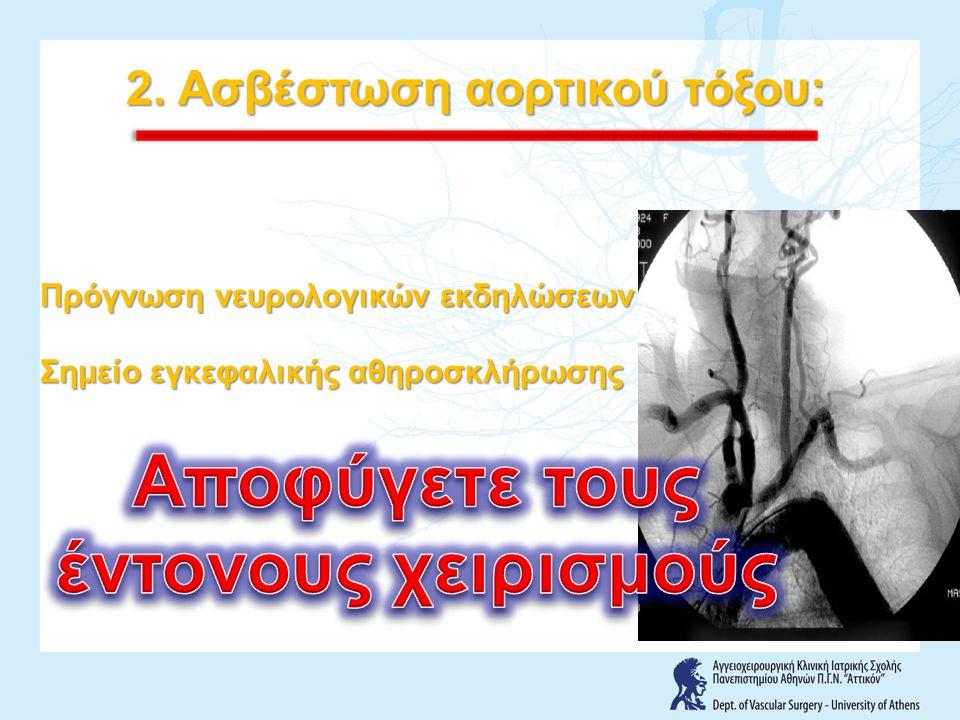 2. Ασβέστωση αορτικού τόξου: Πρόγνωση νευρολογικών εκδηλώσεων Σημείο εγκεφαλικής αθηροσκλήρωσης