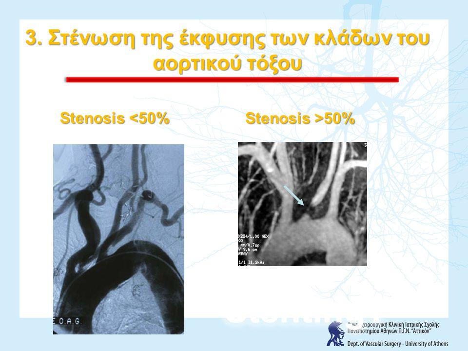 3. Στένωση της έκφυσης των κλάδων του αορτικού τόξου Stenosis <50% Stenosis >50%