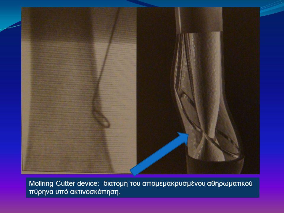 Mollring Cutter device: διατoμή του απομεμακρυσμένου αθηρωματικού πύρηνα υπό ακτινοσκόπηση.