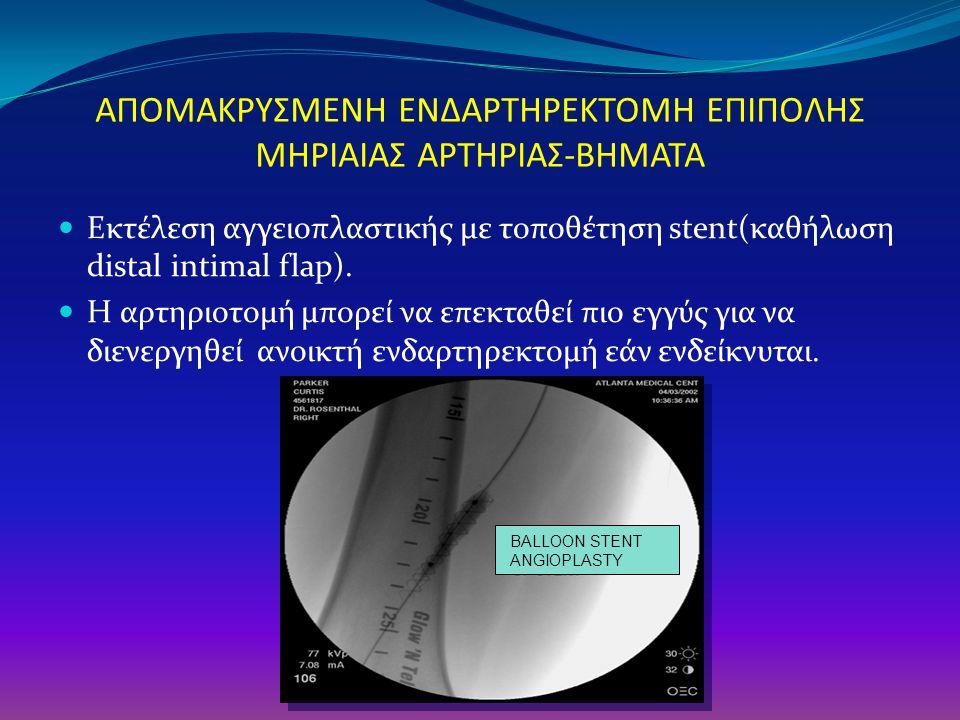 ΑΠΟΜΑΚΡΥΣΜΕΝΗ ΕΝΔΑΡΤΗΡΕΚΤΟΜΗ ΕΠΙΠΟΛΗΣ ΜΗΡΙΑΙΑΣ ΑΡΤΗΡΙΑΣ-ΒΗΜΑΤΑ Εκτέλεση αγγειοπλαστικής με τοποθέτηση stent(καθήλωση distal intimal flap). H αρτηριοτο