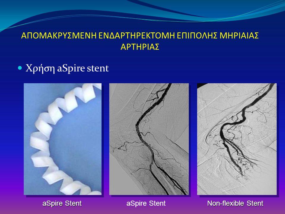 ΑΠΟΜΑΚΡΥΣΜΕΝΗ ΕΝΔΑΡΤΗΡΕΚΤΟΜΗ ΕΠΙΠΟΛΗΣ ΜΗΡΙΑΙΑΣ ΑΡΤΗΡΙΑΣ Χρήση aSpire stent aSpire Stent Non-flexible Stent