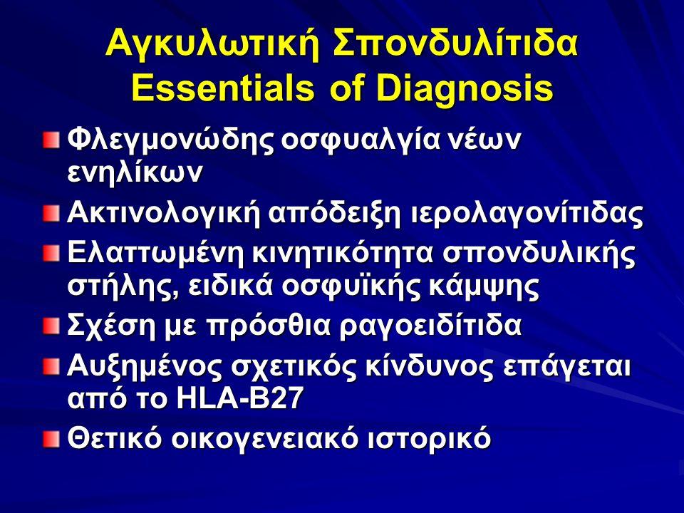 Αγκυλωτική Σπονδυλίτιδα Essentials of Diagnosis Φλεγμονώδης οσφυαλγία νέων ενηλίκων Ακτινολογική απόδειξη ιερολαγονίτιδας Ελαττωμένη κινητικότητα σπονδυλικής στήλης, ειδικά οσφυϊκής κάμψης Σχέση με πρόσθια ραγοειδίτιδα Αυξημένος σχετικός κίνδυνος επάγεται από το HLA-B27 Θετικό οικογενειακό ιστορικό