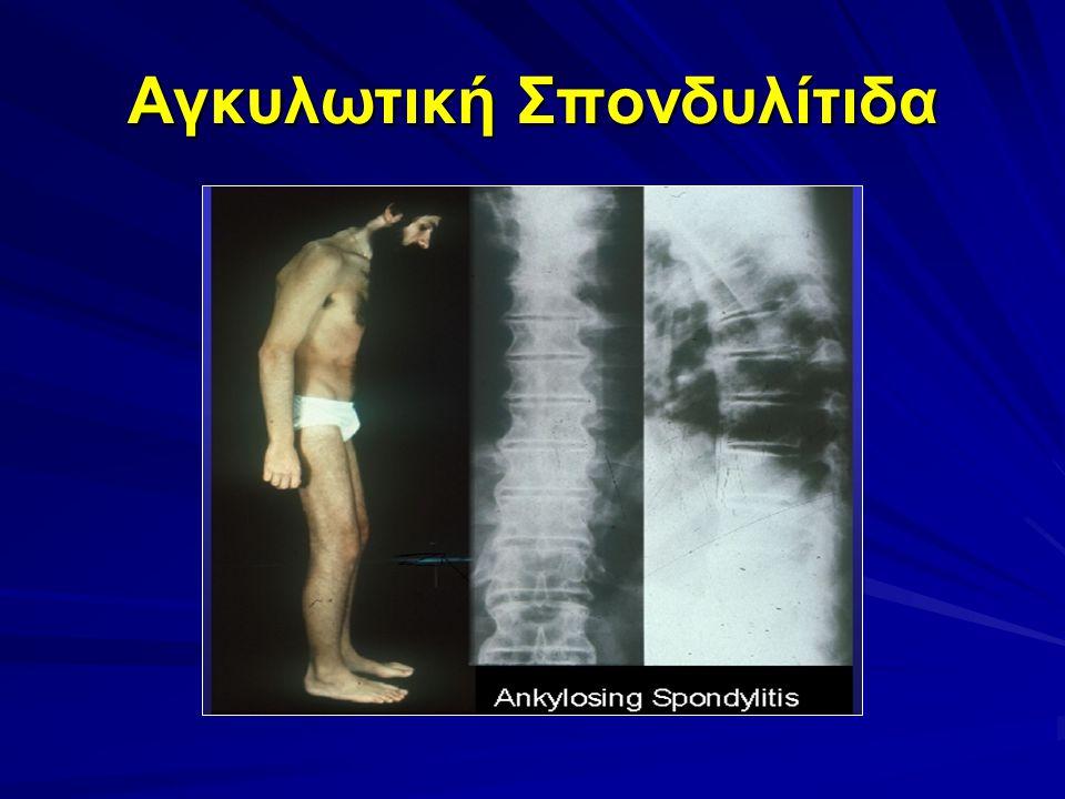 Αγκυλωτική Σπονδυλίτιδα