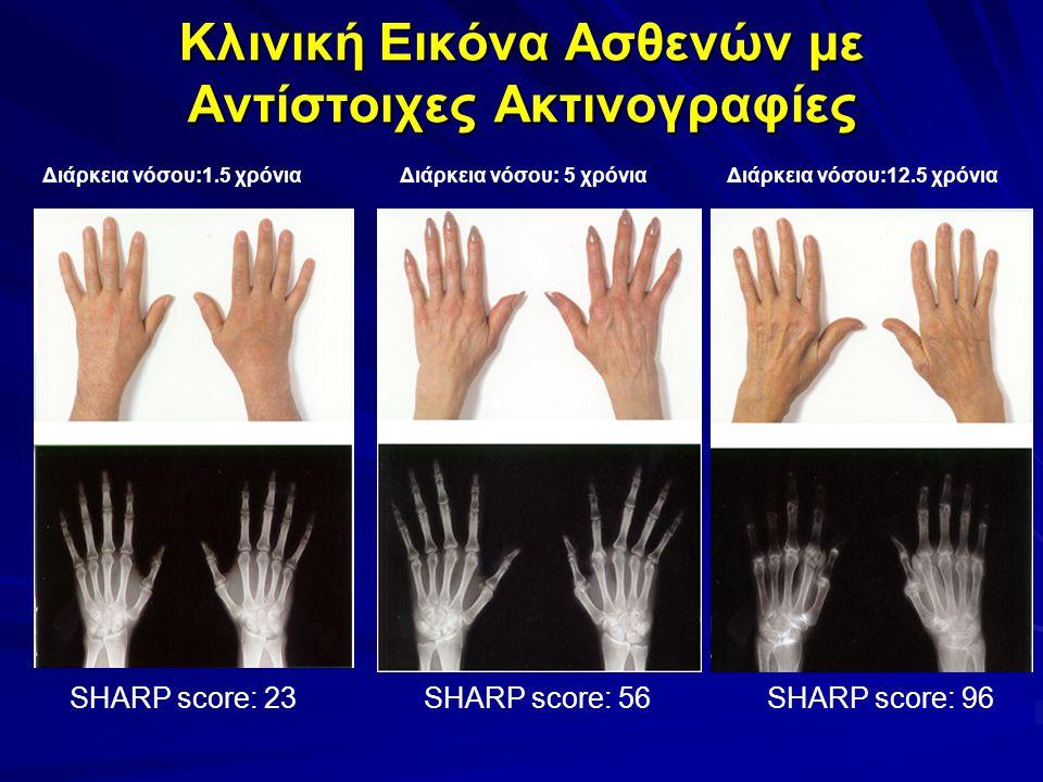 Κλινική Εικόνα Ασθενών με Αντίστοιχες Ακτινογραφίες Διάρκεια νόσου:1.5 χρόνιαΔιάρκεια νόσου: 5 χρόνιαΔιάρκεια νόσου:12.5 χρόνια SHARP score: 23SHARP score: 56SHARP score: 96