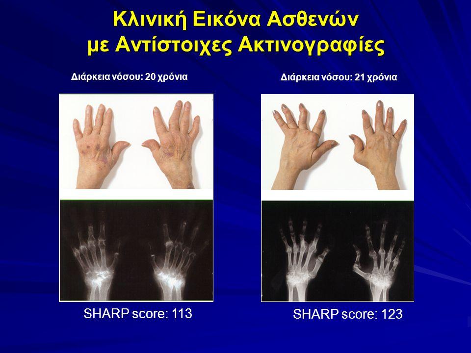 Κλινική Εικόνα Ασθενών με Αντίστοιχες Ακτινογραφίες Διάρκεια νόσου: 20 χρόνια SHARP score: 113 Διάρκεια νόσου: 21 χρόνια SHARP score: 123