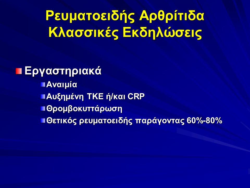 Ρευματοειδής Αρθρίτιδα Κλασσικές Εκδηλώσεις ΕργαστηριακάΑναιμία Αυξημένη ΤΚΕ ή/και CRP Θρομβοκυττάρωση Θετικός ρευματοειδής παράγοντας 60%-80%