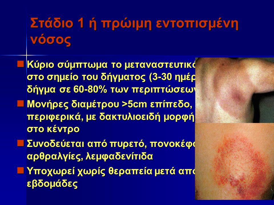 Στάδιο 1 ή πρώιμη εντοπισμένη νόσος Κύριο σύμπτωμα το μεταναστευτικό ερύθημα στο σημείο του δήγματος (3-30 ημέρες μετά το δήγμα σε 60-80% των περιπτώσ