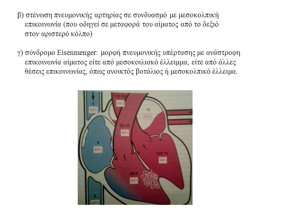 β) στένωση πνευμονικής αρτηρίας σε συνδυασμό με μεσοκολπική επικοινωνία (που οδηγεί σε μεταφορά του αίματος από το δεξιό στον αριστερό κόλπο) γ) σύνδρ