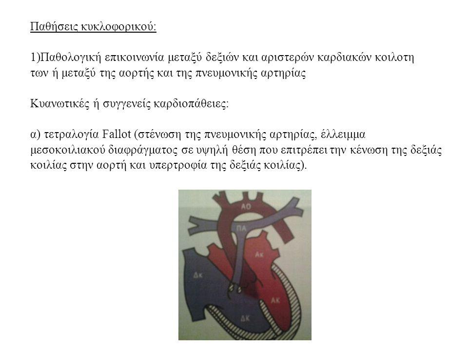 Παθήσεις κυκλοφορικού: 1)Παθολογική επικοινωνία μεταξύ δεξιών και αριστερών καρδιακών κοιλοτη των ή μεταξύ της αορτής και της πνευμονικής αρτηρίας Κυα
