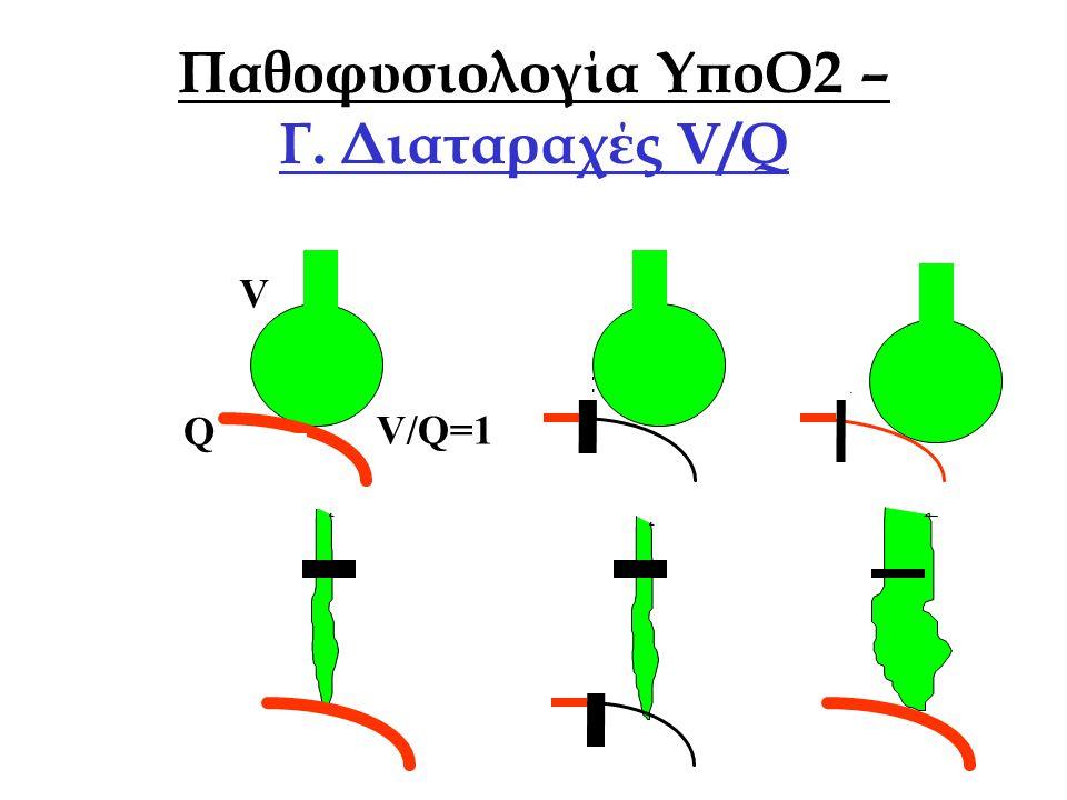 Οξ. Αναπνευστική ΑνεπάρκειαΑθ. Πρεκατές NORMAL ΝΕΚΡΟΣ ΧΩΡΟΣ V/Q SHUNT ΣΙΓΗ V/Q Παθοφυσιολογία ΥποΟ2 – Γ. Διαταραχές V/Q V Q V/Q=1