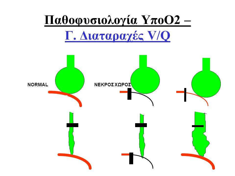 Οξ. Αναπνευστική ΑνεπάρκειαΑθ. Πρεκατές NORMAL ΝΕΚΡΟΣ ΧΩΡΟΣ V/Q SHUNT ΣΙΓΗ V/Q Παθοφυσιολογία ΥποΟ2 – Γ. Διαταραχές V/Q