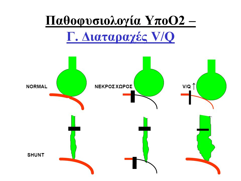 Οξ. Αναπνευστική ΑνεπάρκειαΑθ. Πρεκατές NORMAL ΝΕΚΡΟΣ ΧΩΡΟΣ V/Q ↑ SHUNT ΣΙΓΗ V/Q Παθοφυσιολογία ΥποΟ2 – Γ. Διαταραχές V/Q